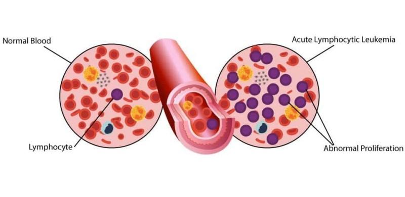 Kanker Darah: Jenis, Penyebab, Gejala dan Pengobatan - Tokopedia Blog