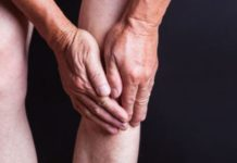 arthritis / radang sendi, penyebab / gejala / cara mengobati arthritis atau radang sendi