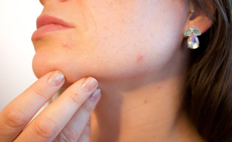 manfaat uap wajah Mencegah Jerawat