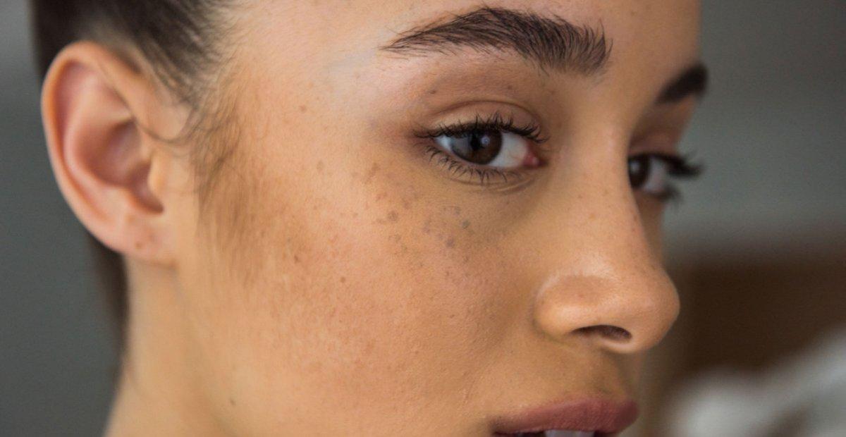 11 Cream Penghilang Flek Hitam Terbaik Wajah Cerah Dan Muda