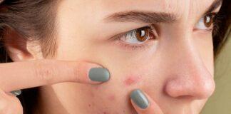 7 Cara Menghilangkan Jerawat Batu di Wajah Alami dan Ampuh!