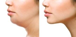 Miliki Wajah V-Shape dengan 6 Cara Menghilangkan Double Chin