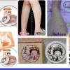 Mau Kaki TerLihat MuLus Secara Cepat? Dodora Invisible Stockings Leg Cream SoLusinya!