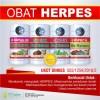 Obat herpes/dompo kulit-tangan-kaki-pantat-kemaluan DLL