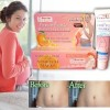 Jaoshiya Pregnant WrinkLes Removing CREAM - PenghiLang Strechtmark