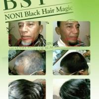 Distributor RESMI BSY Shampo Noni (Penghitam Rambut Hanya Dalam 10 Menit).Termurah,Asli,&Aman