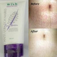 wish anti stretch mark emulsion dr boyke penghilang stretchmark