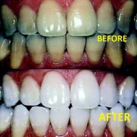 Active Smile teeth whitening home bleaching gel kit pemutih gigi
