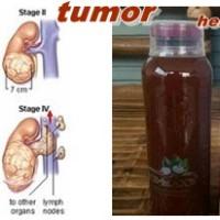 Manfaat Ace Maxs Untuk Tumor