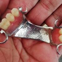 ABI Dental Lab - Pancoran  b3781639e2