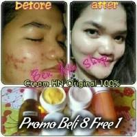 Jual Cream HN Ori Hetty Nugrahati 100% Original | Krim Pemutih Wajah Aman Murah