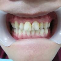 Sarung gigi (Crown)