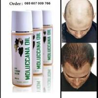 Minyak Kemiri Vitamin Penumbuh Penyubur Rambut Layaknya Green angelica