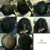 FOXI Magic Hair fiber