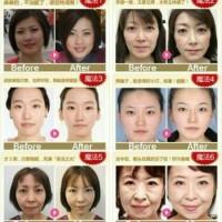 ION FACE MASSAGER/Setrika wajah tirus
