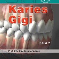 Karies Gigi Ed.2 Prof.Dr.drg.Rasinta Tarigan Limited