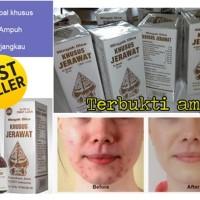 Minyak Oles Jerawat Merk Wayang / Obat Jerawat Wayang BPOM