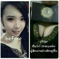 SECRET PLUS BREAST ENLARGEMENT THAILAND ( GUARANTE 100% )