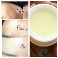 cream formula bekas jerawat (memutihkan kulit)