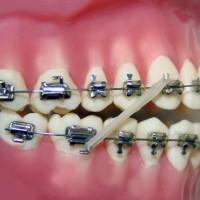Rubber Band Orthodontics : Karet Elastik Untuk Hook