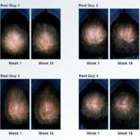 obat penebal penyubur rambut anti obat kebotakan