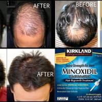 Kirkland minoxidil 5% USA. Obat Oles Penumbuh Rambut & Bulu Pria