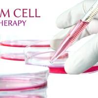 Stem Cell Therapy in Germany Terapi Stem Sell Kecantikan Kesehatan