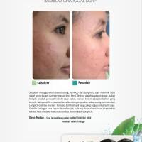 Longrich Natural Essence Bamboo Charcoal Whitening Soap / Sabun 100 Gr