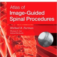 harga Atlas Of Image-guided Spinal Procedures: 1ed Tokopedia.com