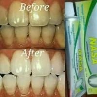 Harga pasta gigi | Pembandingharga.com