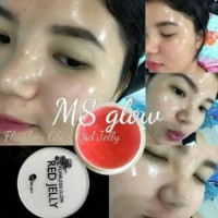 Red Jelly MS Glow By Cantik Skin Care