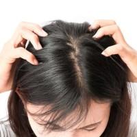 Shampo penghilang kutu rambut
