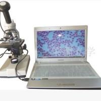 Mikroskop kamera/ lensa okuler dengan konektor USB/ digital eyepiece