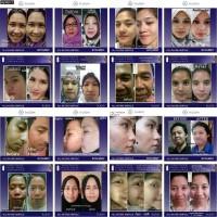 Trulum Skincare 15ML | Atasi Semua Masalah Wajah Pria dan Wanita