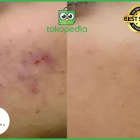 Paket Lengkap Exclusive Mellydia SkinCare Original Free Pouch Cantik
