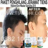Paket Perawatan Kulit Bebas Jerawat Vitaline Zinc + Spirulina Tiens