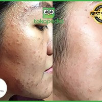 Penghilang Bekas Jerawat | Day Cream Mellydia Skincare