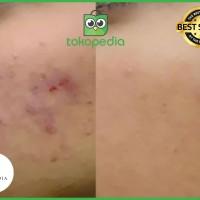 Penghilang Bekas Jerawat Anti Aging | Facial Foam Mellydia Skincare