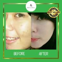 Hilangkan Noda Wajah dengan Cepat | Skincare Herbal Anti Aging