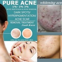 CREAM JERAWAT MEMBANDEL PURE ACNE CLEAR LEVEL 2 (5%)