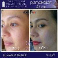 Jual Trulum Skincare 15ml Asli Original ! Pemutih Wajah Aman dan Ampuh Murah