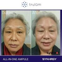 Jual Trulum 15ml/5ml/120ml | Obat Pemutih Wajah Glowing Aman Pria/Wanita Murah