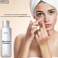 Why Acne Facial Wash Ertos