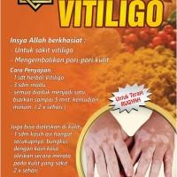 Herbal Vitiligo - mengobati vitiligo