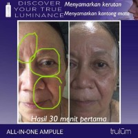 Cream Wajah Untuk Penghilang Kerutan | Trulum 5ml/15ml/120ml