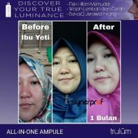 Ready Stock Trulum Synergy ! Pemutih Wajah Original by USA