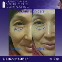 Hilangkan Keriput ! hitungan hari-Trulum Skincare Asli Original