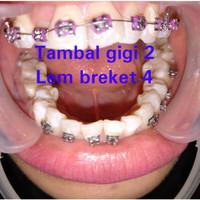 Harga Tambal Gigi Travelbon.com