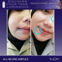 3 Hari Jerawat Hilang / Manfaat Dramatis / Trulum Skincare Original