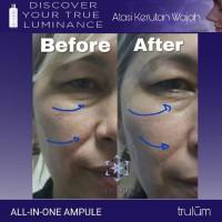 Masker Penghilang Kerutan Wajah   Skincare Anti Aging Paling Ampuh